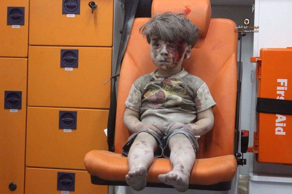 A dazed child receives medical assistance after another horrific day of urban warfare in the battle of Aleppo.